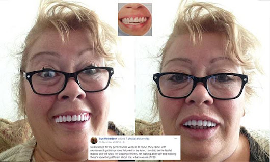 Woman who bought £28 clip-on veneers online was NOT impressed