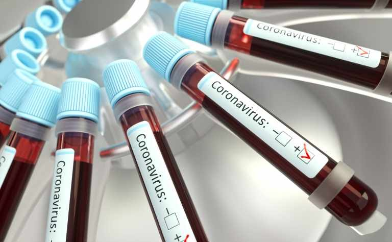Lista atualizada de municípios com casos confirmados do novo coronavírus no Maranhão