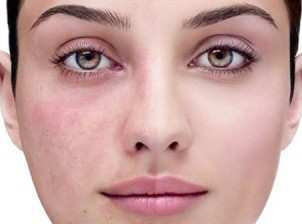 how to remove unwanted hair on upper lip permanently