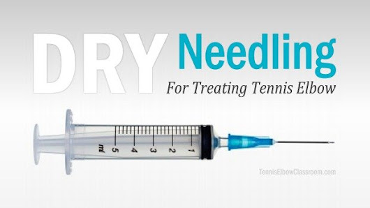 Dry Needling For Tennis Elbow: Who Needs It?