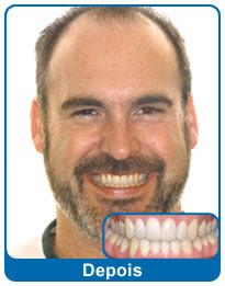 antes-e-depois-aparelho-dentario-2