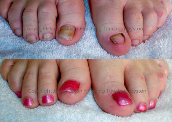 Top Natural Toe Nails With Finishing Touches Royston Nail Extensions Beauty Treatments