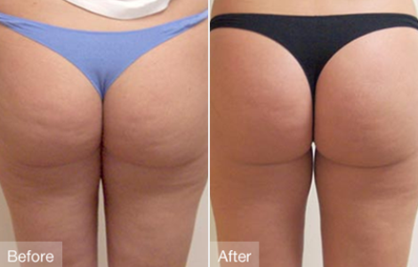 Is Cellulite Factor a Scam?