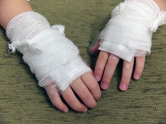 How to Treat Burns and Scalds | NDFA Training