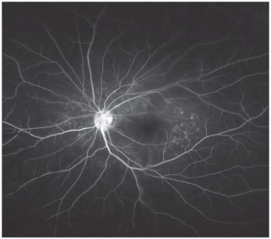 Bilateral Retinal Detachments Presenting With Acute Angle Closure