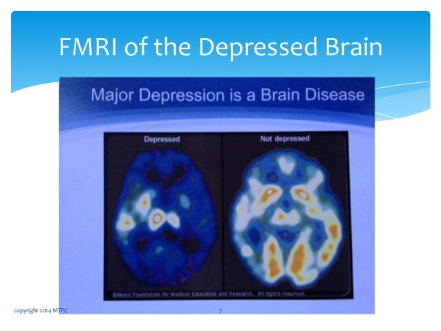 Treating Treatment Refractory Depression With TMS