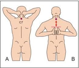 Бубновский восстановление после эндопротезирования тазобедренного сустава