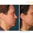 Non-Invasive, FDA-Cleared Skin Tightening Technology Now Available in Hinsdale