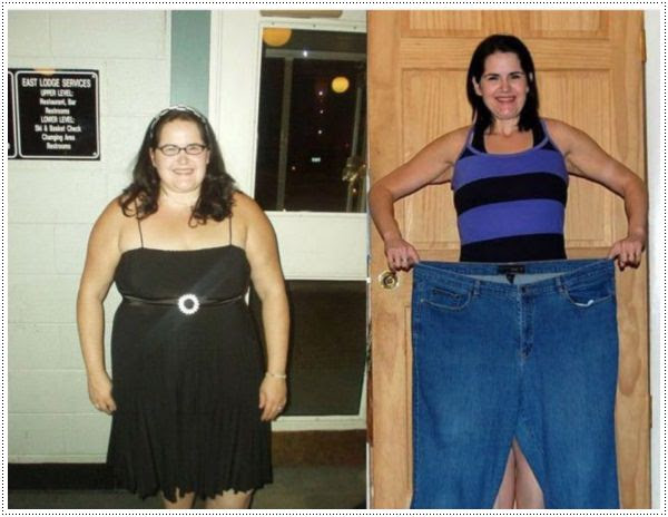 32+ Before And After Weight Loss Picture PNG