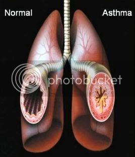 Gejala Penyakit asma, penyebab dan pencegahannya