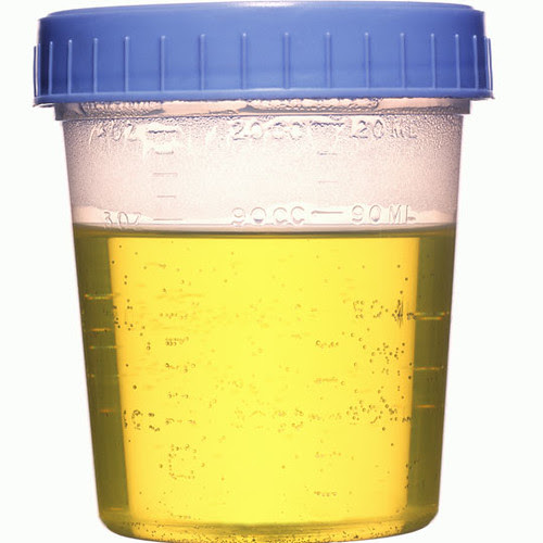 urinesample