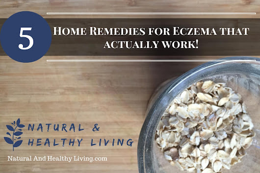 5 Natural Home Remedies For Eczema That Really Work!