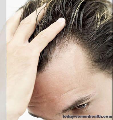 كام متوسط عدد شعر الرأس ؟ وكام شعرة تسقط يومياً ؟