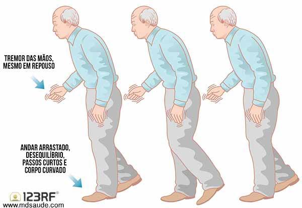 Resultado de imagem para mal de Parkinson