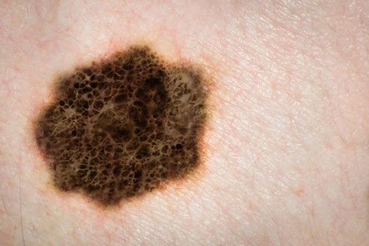 Groundbreaking treatment uses herpes to combat skin cancer - Medical News Today