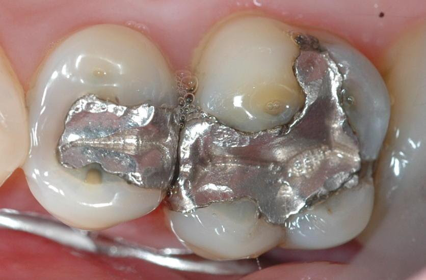 All Diseases Connected to Mercury Teeth Fillings and Proof Studies