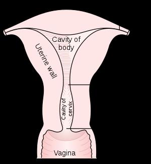 Cancer de vagina, prevenção e hpv