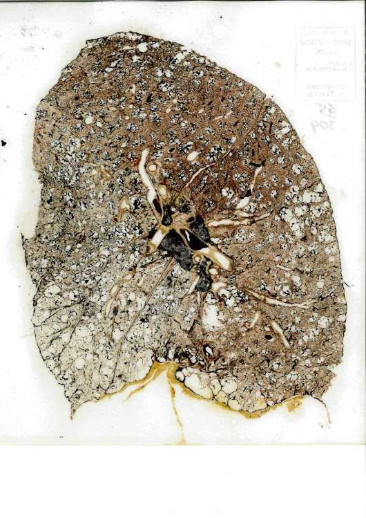 Pathology Spotlight- Emphysema