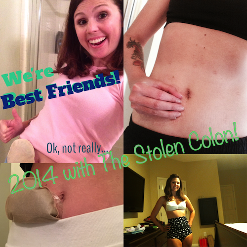 My favorite blog posts from 2014 | The Stolen Colon - Living beautifully with an ostomy.