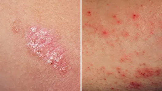 The Key Differences Between Eczema and Psoriasis You Need to Know
