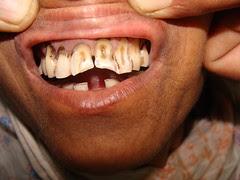 इस मोहतरमा ने तो दांतों को छील ही दिया है