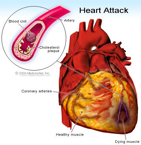 Heart Issue fatality -Child death