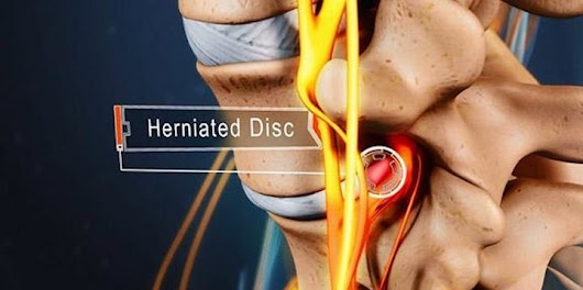Blog | Non-Surgical Treatment for a Lumbar Herniated Disc