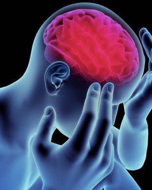 写真:脳卒中後うつ