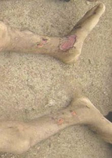 Ulceration on the lower shin and foot of a Syrian detainee