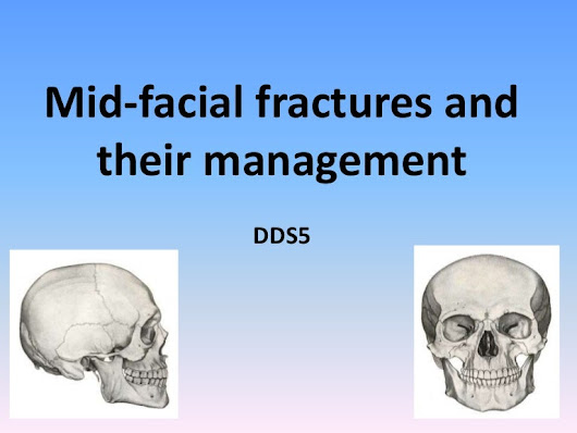 Mid facial fractures and their management