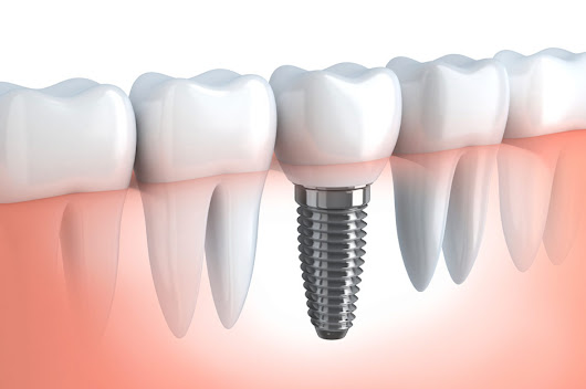 What Is Involved in Getting a Dental Implant? | AXIS Dental Brampton