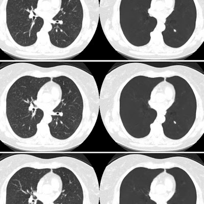 Vessel-subtracting CAD boosts CT lung cancer screening