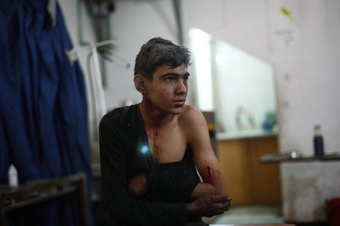 Photographer Abd Doumany continued his strong reportage from war-torn Syria this week. Here, an injured boy is treated at a makeshift hospital in the rebel-held Damascus suburb of Douma, following two reported air strikes by government forces. The rebel bastion of Douma has been under government siege for more than a year, with residents facing dwindling food and medical supplies