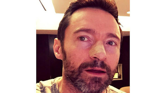 Hugh Jackman tweets selfie warning about skin cancer