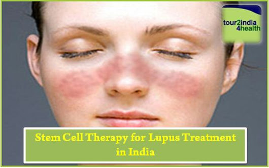 Plan Stem Cell Therapy for Lupus Treatment in India with Tour2India4Health