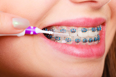 Braces: The New and Improved Way to Straighten Teeth