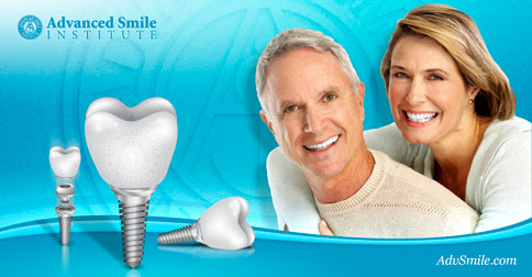 Dental Implants Port St. Lucie, FL - Advanced Smile Institute