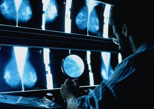 Mammogram screenings don't reduce cancer death rates, study finds