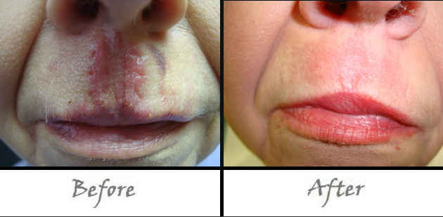 Lasers To Remove Scars Burns And Wrinkles Quickly And