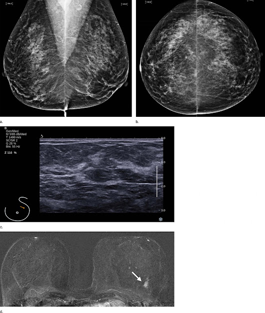 Screening MRI benefits women at average risk of breast cancer - Scienmag: Latest Science and Health News
