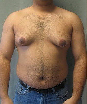 Risperdal and Breast Development in Males