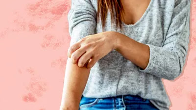 4 Plaque Psoriasis Symptoms: What It Looks and Feels Like