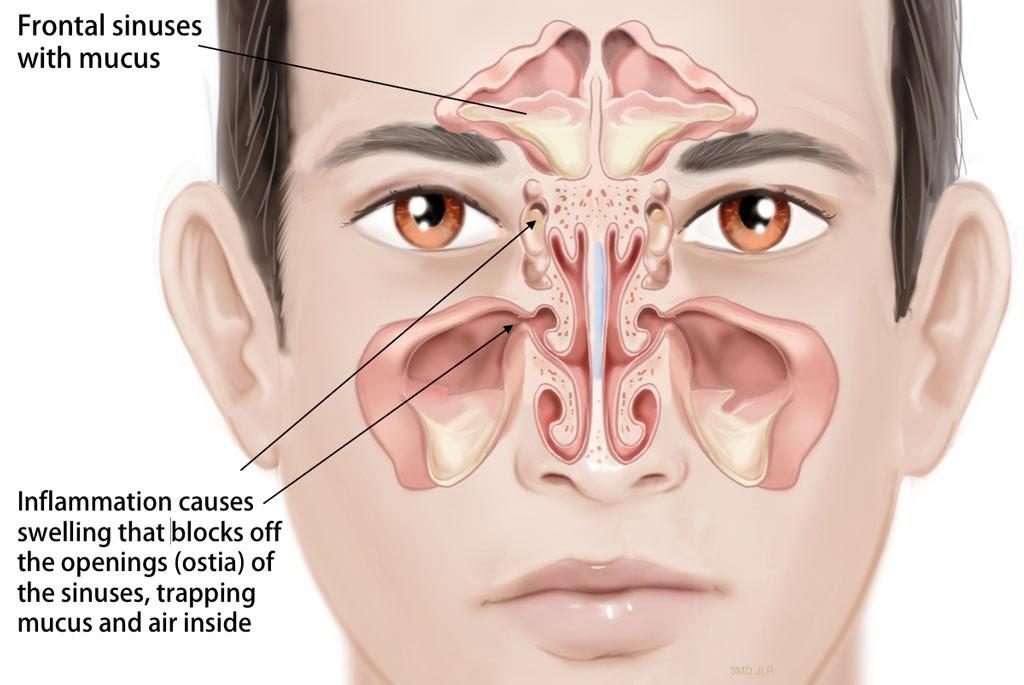 Antibiotics For Preauricular Sinus infection