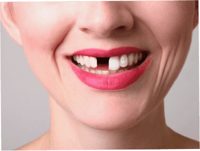 Knocked Out or Broken Teeth - Scarborough Dentist | Upper Bluffs Family Dentist