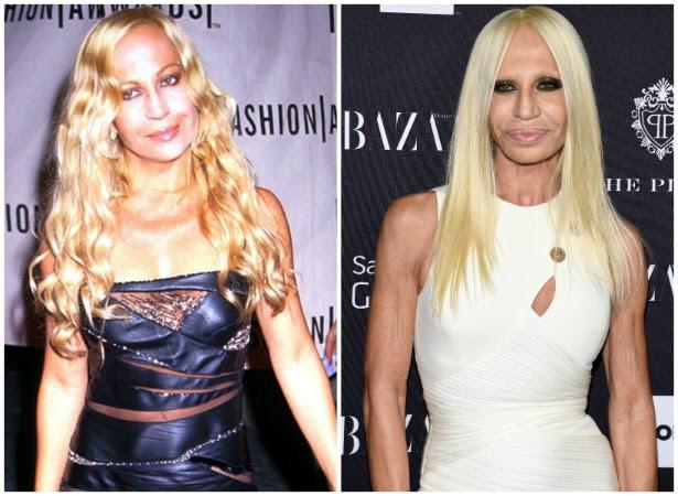 A estilista e empresária Donatella Versace em maio de 1999 e em setembro de 2014. (Foto: Getty Images)