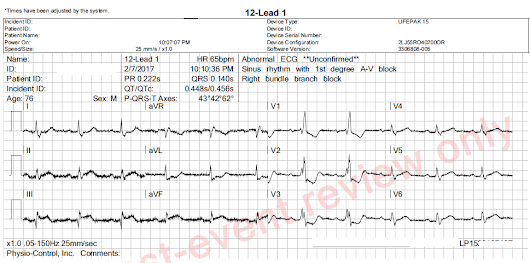 Instructors' Collection ECG: Inferior Wall M.I. and Right Bundle Branch Block | ECG Guru - Instructor Resources