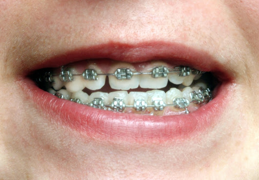 Why DIY braces are actually a terrible, terrible idea