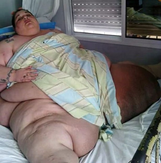 Obesa implora para salvarem sua vida após serviço de saúde alegar ser impossível transportá-la em ambulância