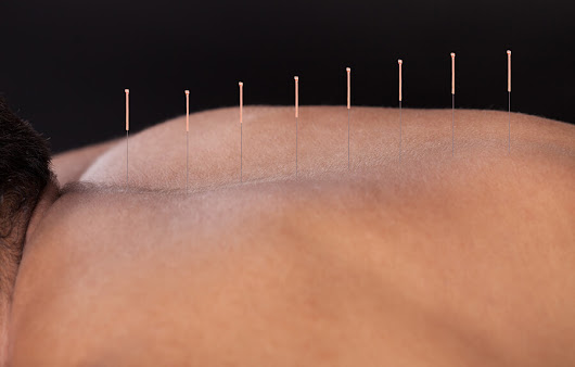 Acupuncture Benefits and Risks - 303-343-8800 - Ascent Health Center