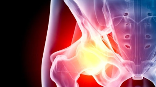 New surgical technique allows for outpatient hip replacement surgery | Fox News